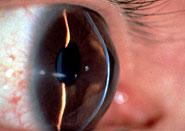 円錐角膜写真