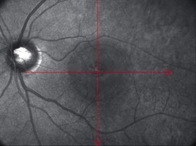 中心性漿液性網脈絡膜症の写真