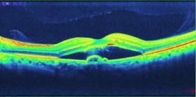 OCTでの中心性漿液性網脈絡膜症の写真