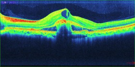 OCTでの加齢黄斑変性症の写真