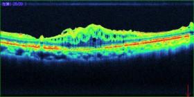 OCTでの黄斑前膜の写真